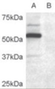 Western blot analysis of DCDC2 in COS7 Cell lysate transfected with full length recombinant human DCDC2 (A) and untransfected control COS7 cells (B) using DCDC2 Antibody at 0.2 ug/mL.