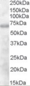 Western blot analysis of DEF6 in human thymus lysate (35 ug protein in RIPA buffer) using DEF6 Antibody at 1 ug/mL.