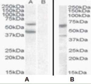 Image A: HEK293 overexpressing DGAT2 (lane A) and probed with DGAT2 antibody (mock transfection in laneB). Image B: DGAT2 Antibody at 0.5 ug/mL staining of human liver lysate in the third lane (35 ug protein in RIPA buffer).