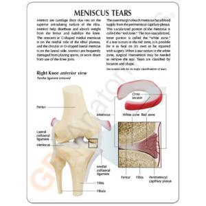 GPI Anatomicals® Meniscus Knee
