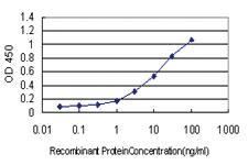 Anti-NR2E3 Mouse Monoclonal Antibody [clone: 2A12]