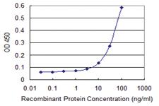 Anti-IKBKE Mouse Monoclonal Antibody [clone: 1F7]