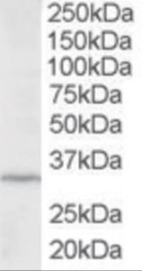 Western blot analysis of ING2 in HepG2 lysate (RIPA buffer, 35 ug total protein per lane) using ING2 Antibody at 2 ug/mL.