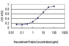 Anti-PPM1F Mouse Monoclonal Antibody [clone: 2A9]