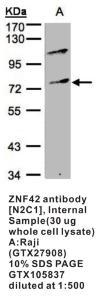 Anti-ZNF42 Rabbit Polyclonal Antibody