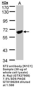 Anti-IL1RL1 Rabbit Polyclonal Antibody
