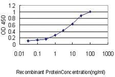 Anti-HDAC5 Mouse Monoclonal Antibody [clone: 4G2]