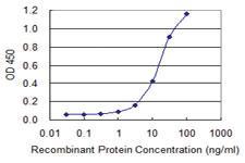 Anti-ALDH1L1 Mouse Monoclonal Antibody [clone: 3E9]