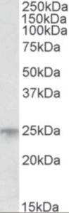 Western blot analysis of MSC in human bone marrow lysate (RIPA buffer, 35 ug total protein per lane) using MSC Antibody at 1 ug/mL.