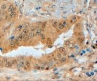 Immunohistochemistry staining of Semaphorin 3E in paraffin embedded human prostate using Semaphorin 3E Antibody at 4 u. Steamed antigen retrieval with citrate buffer pH 6, HRP-staining.