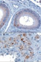 VPS35 staining of paraffin embedded human testis showing A) Epithelial cells of the epididymis and B) Some leydig cells. Microwaved antigen retrieval with A)Tris/EDTA buffer pH9 at 3 ug/mL or B) Citrate buffer pH 6 at 10 ug/mL.