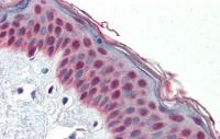 Antibody used in IHC on Human Skin at 5.0 ug/ml.