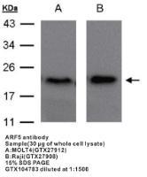Anti-ARF5 Rabbit Polyclonal Antibody
