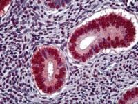 Immunohistochemistry of human uterus tissue stained using Progesterone Receptor Monoclonal Antibody.