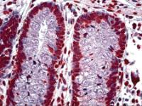 Immunohistochemistry of human colon crypt tissue stained using CDKN2A Monoclonal Antibody.