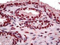 Immunohistochemistry of human prostate tissue stained using DLX2 Monoclonal Antibody.
