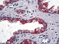 Immunohistochemistry of human prostate tissue stained using Cytoke Monoclonal Antibody.