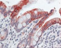 Immunohistochemistry of human small intestine tissue stained using Cytokeratin 20 Monoclonal Antibody.