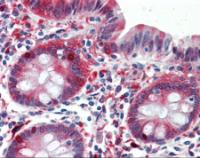 Immunohistochemistry of human colon tissue stained using ALDH1A1 Monoclonal Antibody.