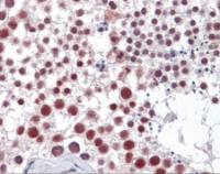 Immunohistochemistry of human testis tissue stained using Cyclin H Monoclonal Antibody.