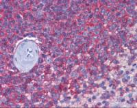 Immunohistochemistry of human spleen tissue stained using CD44 Monoclonal Antibody.