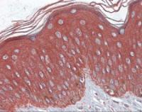 Immunohistochemistry of human skin tissue stained using Cytokeratin 17 Monoclonal Antibody.