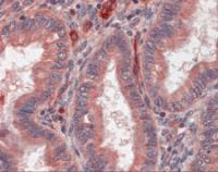 Anti-ACHE Sheep Polyclonal Antibody