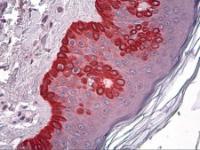 Immunohistochemistry of human skin tissue stained using CELA1 Monoclonal Antibody.