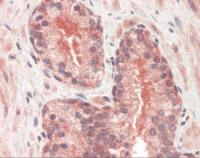 Human prostate tissue stained with CYR61 Antibody at 5 ug/mL followed by biotinylated anti-mouse IgG secondary antibody, alkaline phosphatase-streptavidin and chromogen.