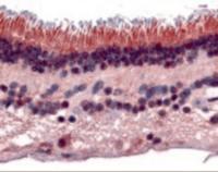 Immunohistochemistry staining of PTPRM in retina tissue using PTPRM Antibody.
