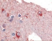 Immunohistochemistry staining of PYGB in brain tissue using PYGB Antibody.