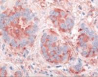 Immunohistochemistry staining of KDR in breast carcinoma tissue using KDR Antibody.