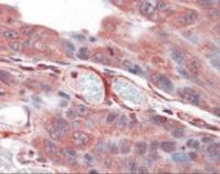 Immunohistochemistry staining of PLA2G3 in colon carcinoma tissue using PLA2G3 Antibody.