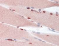 Immunohistochemistry staining of TP53BP1 in skeletal muscle tissue using TP53BP1 Antibody.