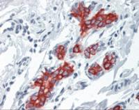 Human breast tissue stained with Cytoke Antibody at 10 ug/mL followed by biotinylated anti-mouse IgG secondary antibody, alkaline phosphatase-streptavidin and chromogen.