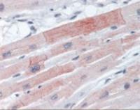 Immunohistochemistry staining of EIF4E in heart tissue using EIF4E Antibody.