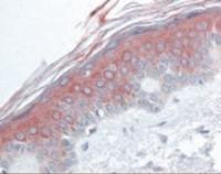 Immunohistochemistry staining of Histone Deacetylase 4 in skin tissue using Histone Deacetylase 4 Antibody.