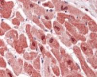 Immunohistochemistry staining of MAPK1 in heart tissue using MAPK1 Monoclonal Antibody.