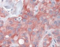 Immunohistochemistry staining of ERBB2 in breast, carcinoma tissue using ERBB2 Antibody.