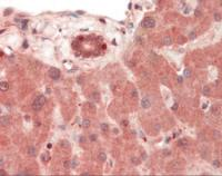Immunohistochemistry staining of TLR4 in liver tissue using TLR4 monoclonal Antibody.