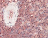 Immunohistochemistry staining of PDCD1 in spleen tissue using PDCD1 Antibody.