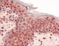 Immunohistochemistry staining of GLI2 in skin tissue using GLI2 Antibody.