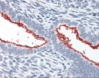 Immunohistochemistry staining of Mucin 16 in uterus tissue using Mucin 16 monoclonal Antibody.