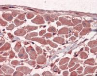Anti-MBNL1 Mouse Monoclonal Antibody