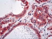 Immunohistochemistry of human thyroid tissue stained using Alpha-Actinin-4 Monoclonal Antibody.