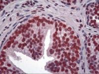 Immunohistochemistry of human prostate tissue stained using LHX4 Monoclonal Antibody.