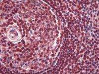 Immunohistochemistry of human spleen tissue stained using PAX5 Monoclonal Antibody.