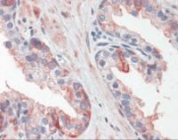 Human prostate tissue stained with HSPB1 Antibody at 10 ug/mL followed by biotinylated anti-mouse IgG secondary antibody, alkaline phosphatase-streptavidin and chromogen.