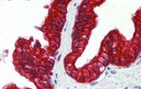 Antibody used in IHC on Human Prostate at 5.0 ug/ml.
