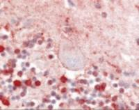 Immunohistochemistry staining of GPR92 in cerebellum :(formalin-fixed paraffin-embedded) tissue using GPR92 Antibody.